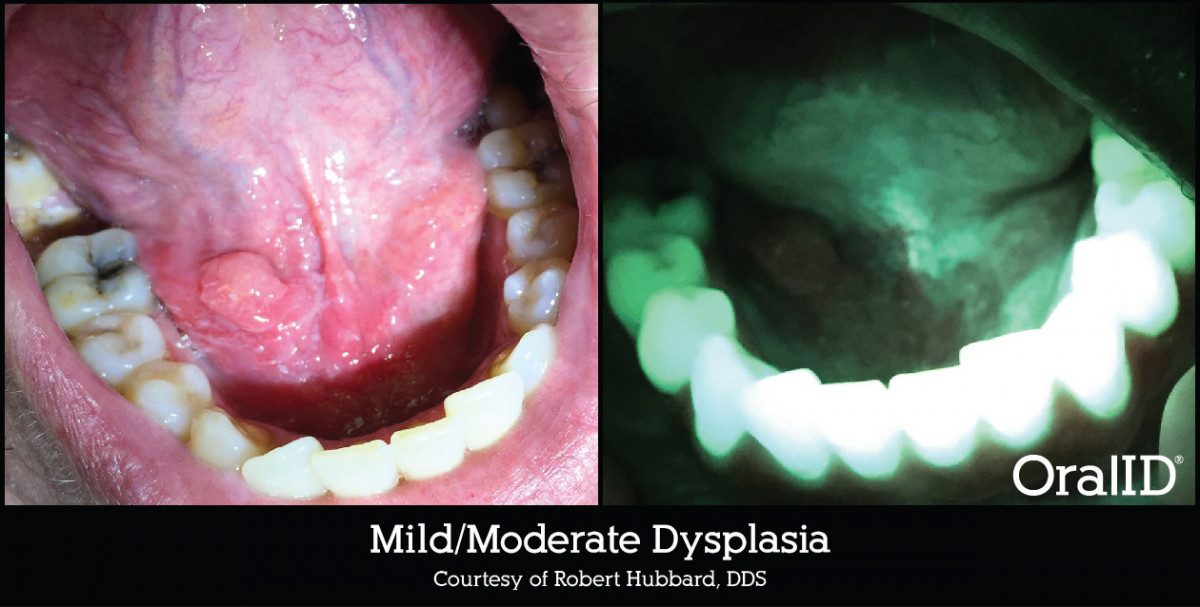 OralID - Mild/Moderate Dysplasia with Bacteria