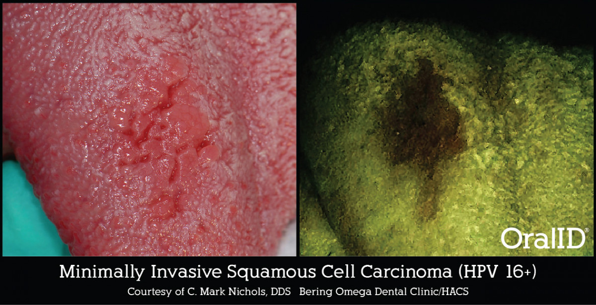 OralID - Minimally Invasive Squamous Cell Carcinoma (HPV 16+)